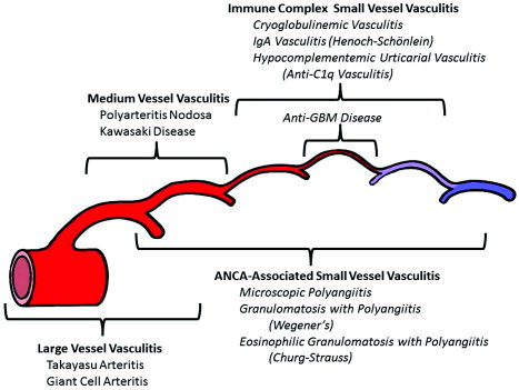 Distribution of vessel size and Vasculitis